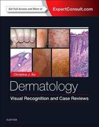 Dermatology: Visual Recognition and Case Reviews