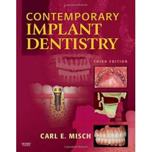 Contemporary Implant Dentistry by Carl E. Misch