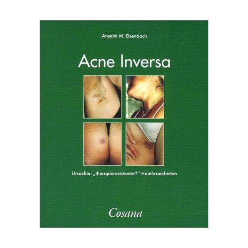 Eisenbach, Anselm M. - Acne Inversa - Preis vom 21.06.2021 04:48:19 h