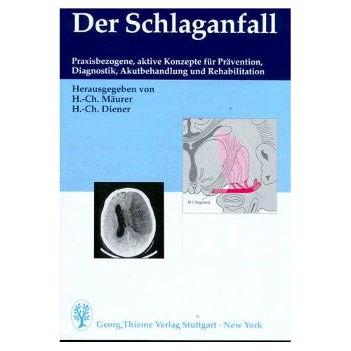 Horst-Christian Mäurer - Der Schlaganfall - Preis vom 24.07.2021 04:46:39 h