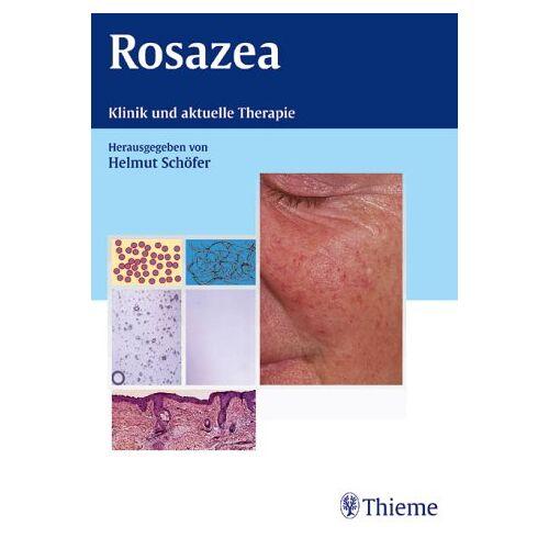Helmut Schöfer - Rosazea. Klinik und aktuelle Therapie - Preis vom 20.10.2020 04:55:35 h