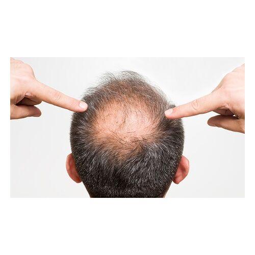 101 Haar 60 Minuten Haarausfall-Diagnose und Haarausfall-Therapiesitzung bei 101 Haar (bis zu 82% sparen*)