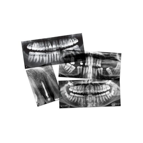 Roylco Zahnmedizinische Röntgenbilder