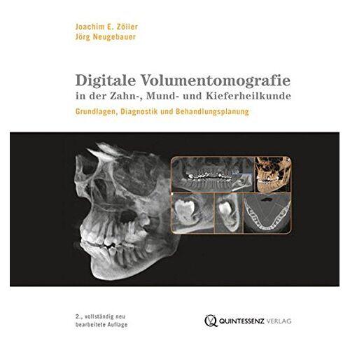 Zöller, Joachim E. - Digitale Volumentomografie in der Zahn-, Mund- und Kieferheilkunde: Grundlagen, Diagnostik und Therapieplanung (mit DVD-ROM) - Preis vom 19.06.2021 04:48:54 h