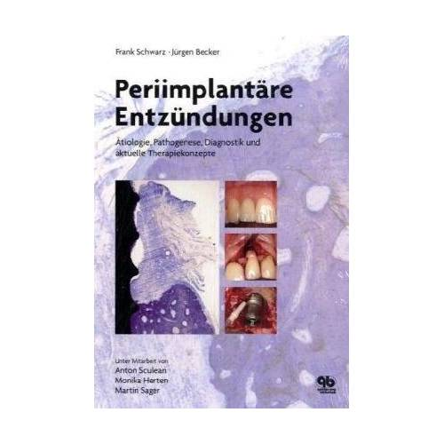 Frank Schwarz - Periimplantäre Entzündungen: Ätiologie, Pathogenese, Diagnostik und aktuelle Therapiekonzepte - Preis vom 19.06.2021 04:48:54 h