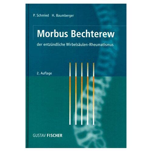 Paul Schmied - Morbus Bechterew, der entzündliche Wirbelsäulen-Rheumatismus - Preis vom 14.06.2021 04:47:09 h