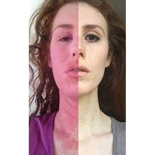 Cara Ward - Curing my Incurable Eczema - Preis vom 20.06.2021 04:47:58 h
