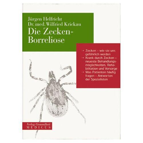 Jürgen Helfricht - Die Zecken- Borreliose - Preis vom 09.06.2021 04:47:15 h