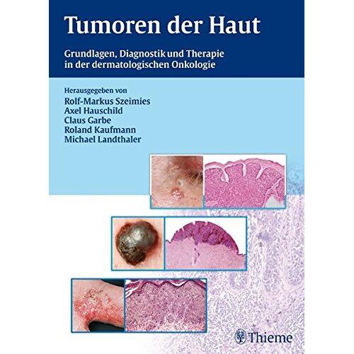 Claus Garbe - Tumoren der Haut: Grundlagen, Diagnostik und Therapie in der dermatologischen Onkologie - Preis vom 28.07.2021 04:47:08 h