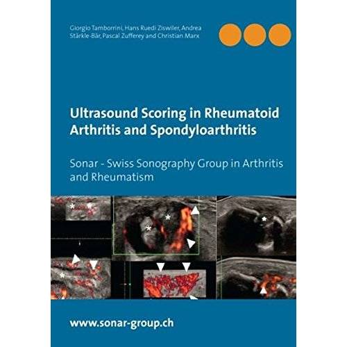 Giorgio Tamborrini - Ultrasound Scoring in Rheumatoid Arthritis and Spondyloarthritis: Sonar - Swiss Sonography Group in Arthritis and Rheumatism - Preis vom 14.05.2021 04:51:20 h