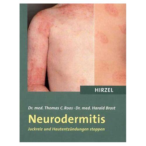 Roos, Thomas C. - Neurodermitis. Juckreiz und Hautentzündungen stoppen - Preis vom 12.01.2021 06:02:37 h