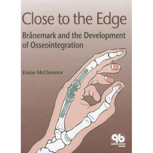 Elaine McClarence - Close to the Edge: Branemark and the Development of Osseointegration - Preis vom 15.05.2021 04:43:31 h