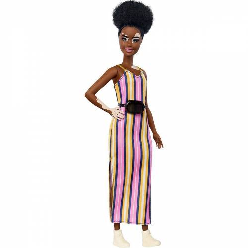 Mattel Anziehpuppe »Barbie Fashionistas Puppe (Vitiligo) mit«