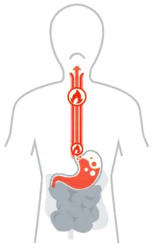 Recette contre l'acidité de l'estomac - Les Coffrets de l'Herboriste