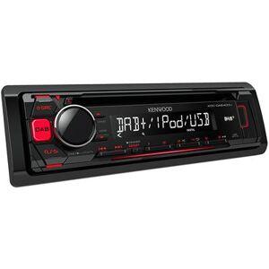 Kenwood kdc-dab400u stéréo de voiture CD avec radio DAB et façade amovible - Voiture