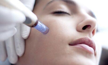 Salon Beauté Bio Enghien Les Bains Microneedling anti-âge acide hyaluronique vitamines profondeur à l'institut Salon Beauté Bio Enghien Les Bains