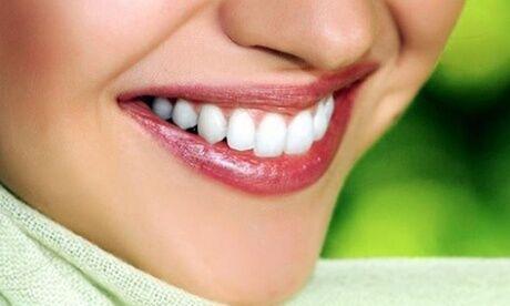 Éclat Du Sourire 1 ou 2 séances de blanchiment dentaire sans peroxyde de 30 minutes chacune à l'institut Éclat Du Sourire