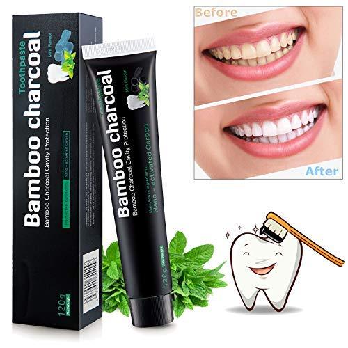 nowkin sbiancante per denti, dentifricio carbone attivo sbiancante, dentifricio sbiancante denti - dentifricio al carbone dentifricio nero, sbiancamento denti professionale, pulizia denti