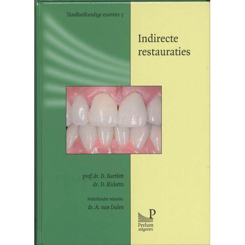 Indirecte restauraties - D. Bartlett, D. Ricketts (ISBN: 9789085620686)