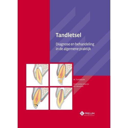 Tandletsel - M. Tsukiboshi (ISBN: 9789085621294)