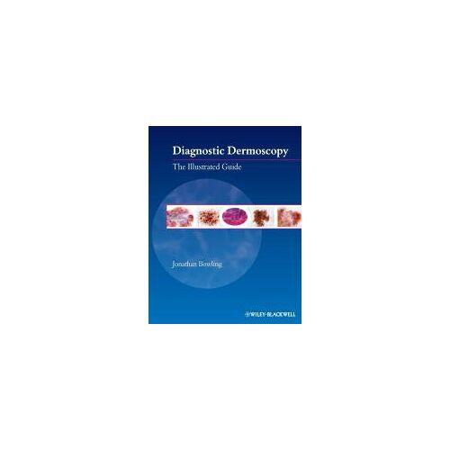 Diagnostic Dermoscopy by Jonathan Bowling