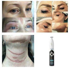 DHgate fibroblast portable plasma pen eyelid lifting plasmapen anti wrinkle skin care tightening spot mole remover beauty machine dhl